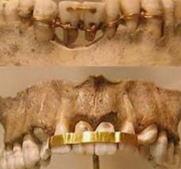 Dentisterie en Égypte ancienne
